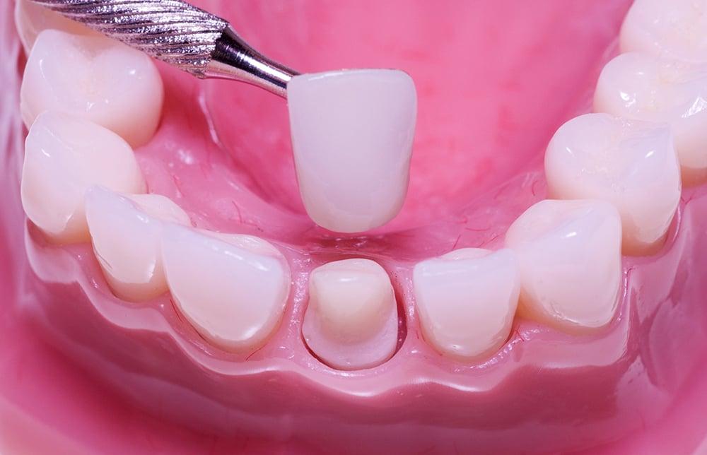 răng sứ nguyên hàm uy tín