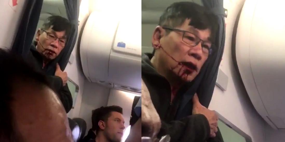 Clip gây sốc: Bác sĩ châu Á mặt đầy máu liên tục nói Giết tôi đi khi bị nhân viên hãng hàng không Mỹ thô bạo lôi khỏi máy bay - Ảnh 3.