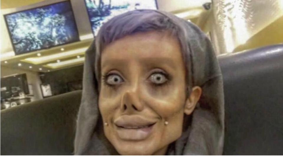 Cô gái phẫu thuật thẩm mỹ hơn 50 lần để nhìn giống Angelina Jolie, kết quả trả về gia tinh Dobby - Ảnh 2.