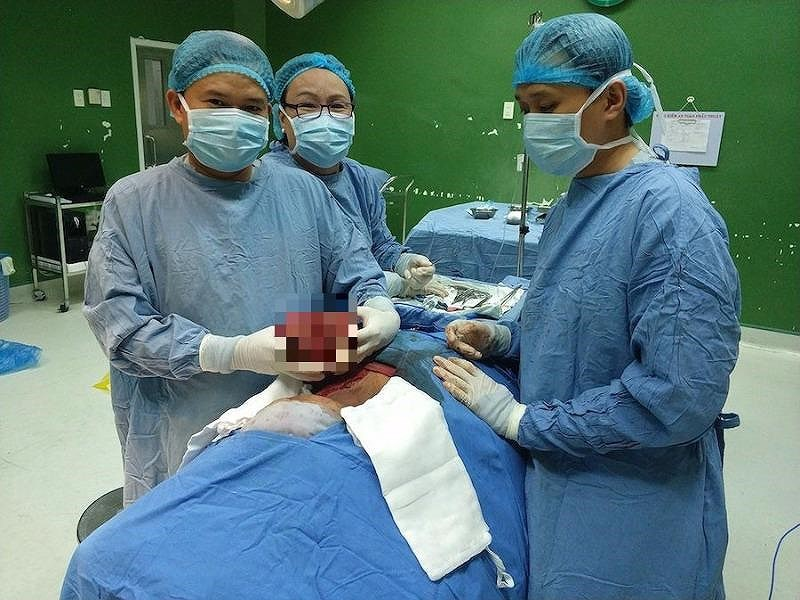 """Cắt khối u """"khủng"""" nặng 2kg ra khỏi cổ cụ bà 68 tuổi ở Đà Nẵng - Ảnh 1."""