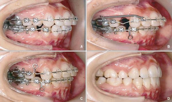 Chuyên gia cảnh báo: Đừng đợi quá muộn mới đi niềng răng - Ảnh 4.