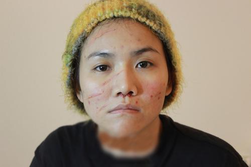 3 năm gặp lại, thí sinh X-Factor đeo mặt nạ gây xôn xao đã hoàn toàn lột xác nhờ thẩm mỹ - Ảnh 2.