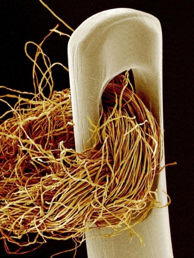 Ai cũng từng nhìn, ăn các thứ này nhưng mấy ai biết dưới kính hiển vi chúng đáng sợ như thế nào - Ảnh 10.
