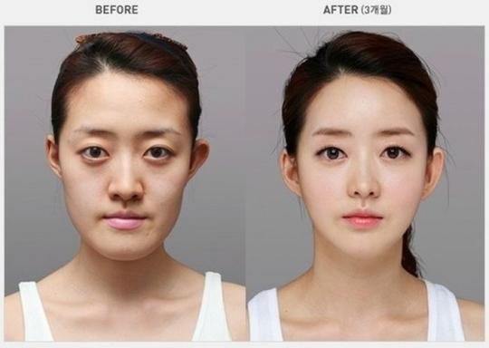 Xem cách con người đục đẽo khuôn mặt để có một chiếc cằm đẹp chuẩn chỉnh - Ảnh 1.
