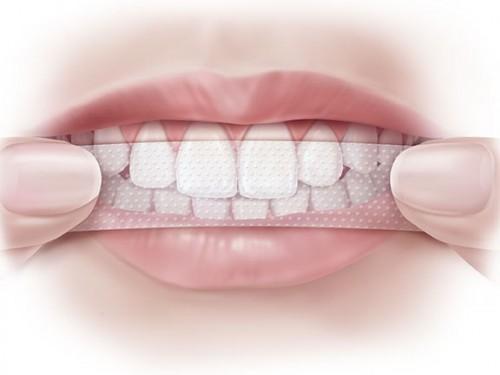 Chuyên gia bật mí ưu nhược điểm các phương pháp tẩy trắng răng phổ biến hiện nay - Ảnh 6.