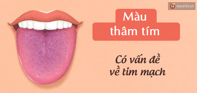 Lưỡi có 4 biểu hiện này, hãy đi kiểm tra sức khoẻ cấp tốc - Ảnh 3.