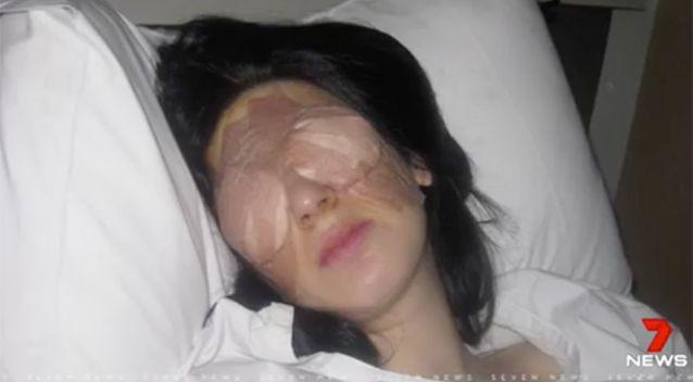 Người phụ nữ nhắm mắt 3 ngày, mở mắt 3 ngày suốt 13 năm vì bệnh lạ - Ảnh 2.