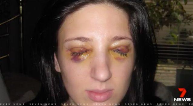 Người phụ nữ nhắm mắt 3 ngày, mở mắt 3 ngày suốt 13 năm vì bệnh lạ - Ảnh 1.
