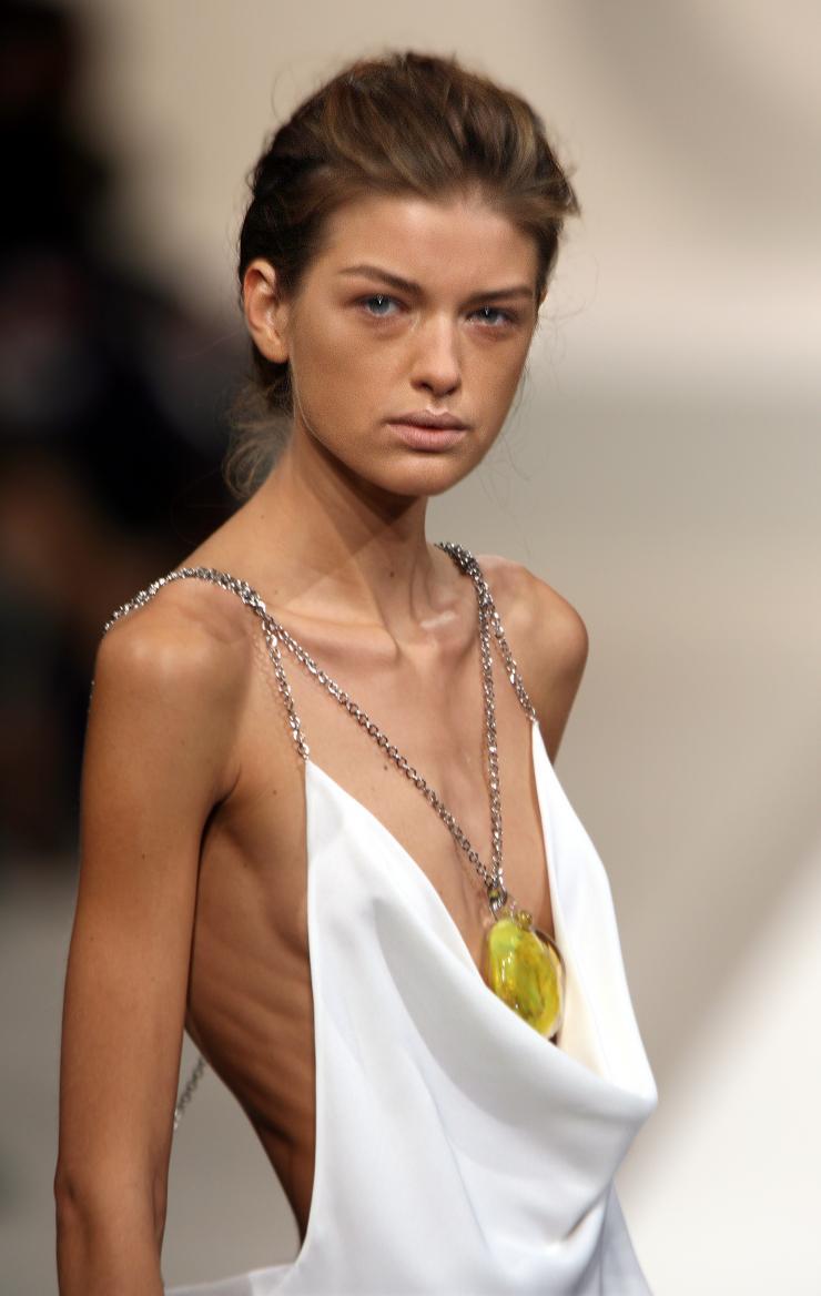 Người mẫu gầy giơ xương: Cơn ác mộng dai dẳng mà ngành công nghiệp thời trang đã tạo ra! - Ảnh 4.