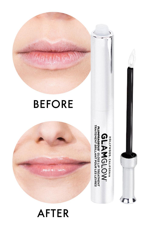 4 phương pháp siêu hot giúp bạn có ngay đôi môi tều gấp đôi bình thường - Ảnh 5.