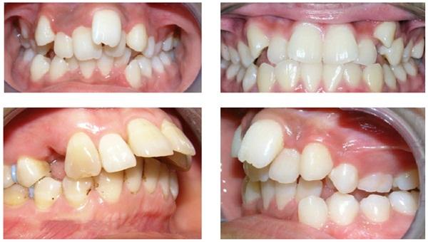 Chuyên gia cảnh báo: Đừng đợi quá muộn mới đi niềng răng - Ảnh 1.