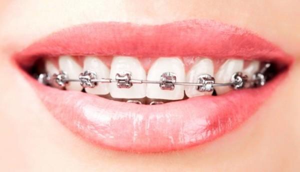 Kết quả hình ảnh cho trong ngành nha khoa thì thưa răng