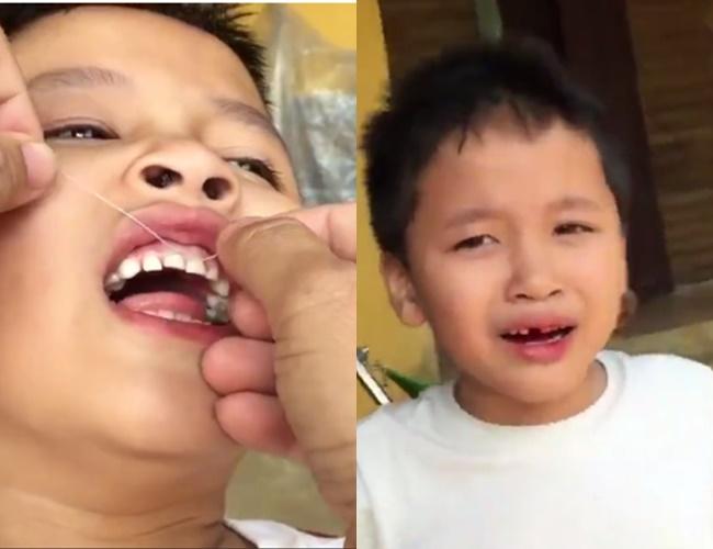 Clip: Ông bố nhổ răng cho con trai bằng... xe máy - Ảnh 2.
