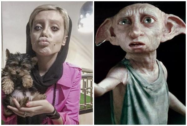 Cô gái phẫu thuật thẩm mỹ hơn 50 lần để nhìn giống Angelina Jolie, kết quả trả về gia tinh Dobby - Ảnh 6.