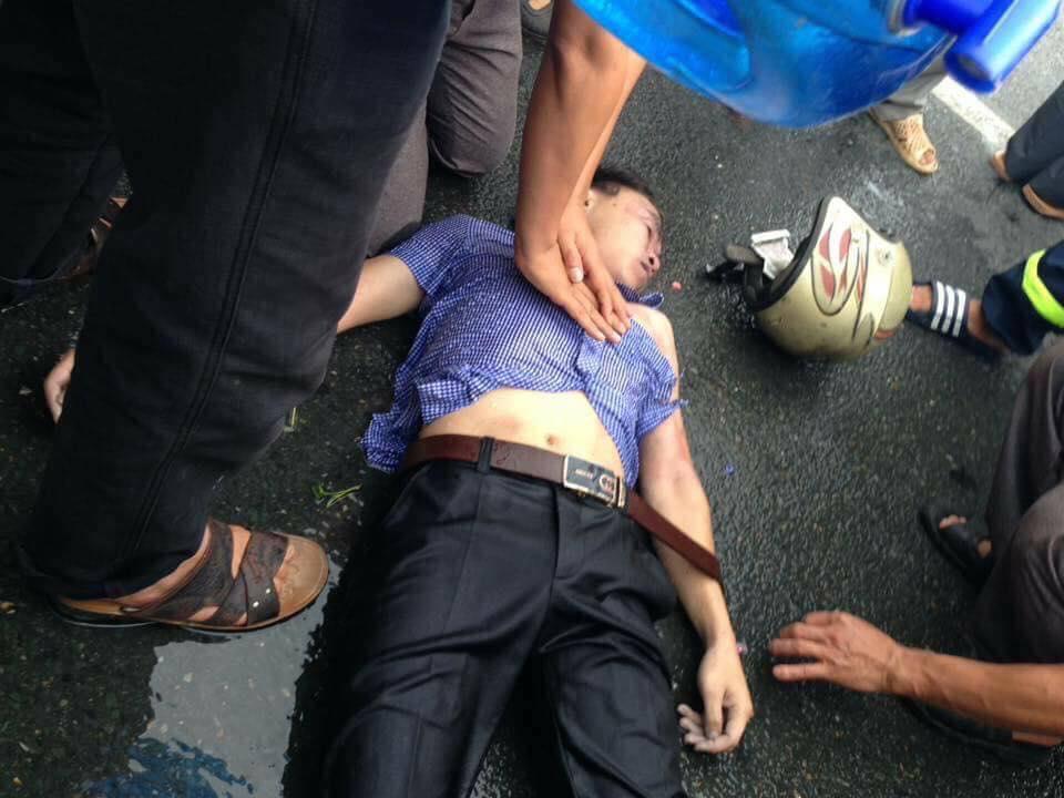Vĩnh Phúc: Đang đi giữa đường, nam thanh niên bị sét đánh trúng mặt gây bất tỉnh - Ảnh 1.