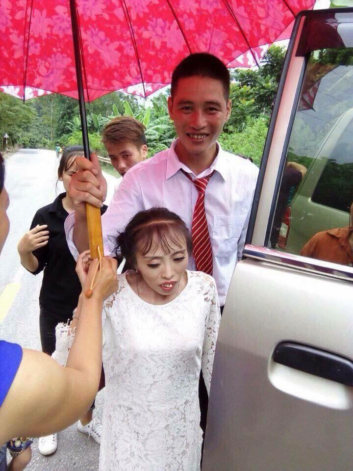 Bị gia đình ngăn cản vì cô dâu thấp còi suy dinh dưỡng, chú rể Lạng Sơn vẫn quyết về chung 1 nhà - Ảnh 3.