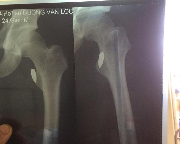 Vĩnh Phúc: Vận động viên võ thuật Pencak Silat bị trúng đạn sau buổi tập - Ảnh 2.