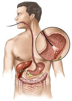3 nhóm người có nguy cơ mắc ung thư dạ dày cao hơn người khác - Ảnh 2.