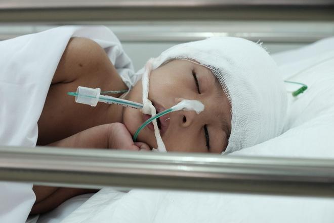 """Mẹ bé gái 3 tuổi té cầu thang chấn thương sọ não nặng khi theo mẹ đi giúp việc: """"Tôi không bỏ con mình - Ảnh 1."""