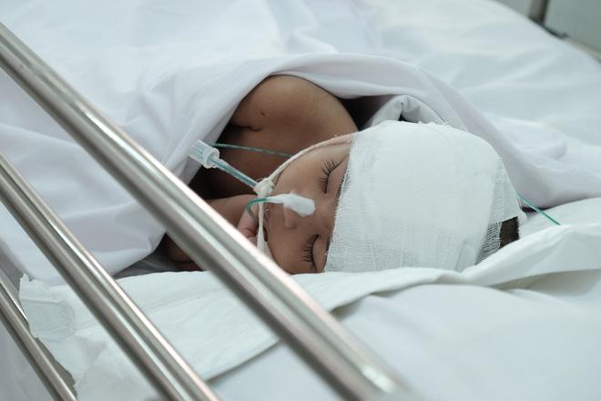 """Mẹ bé gái 3 tuổi té cầu thang chấn thương sọ não nặng khi theo mẹ đi giúp việc: """"Tôi không bỏ con mình - Ảnh 2."""