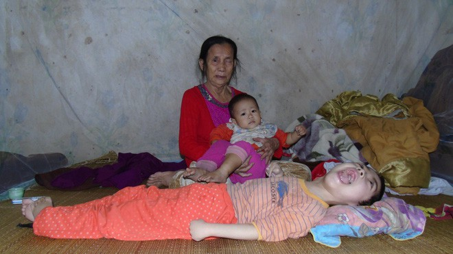 Mỗi ngày buộc phải cho con uống 12 viên thuốc ngủ, người mẹ đau đớn chứng kiến con ngày càng héo úa - Ảnh 2.