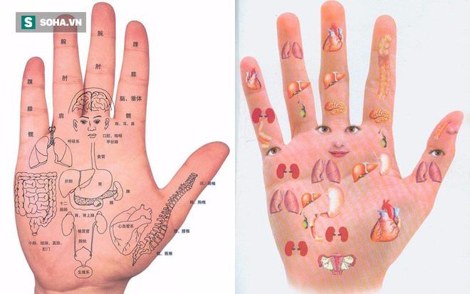 Một điểm trên bàn tay bị đỏ: Dấu hiệu cảnh báo bệnh gan không thể xem nhẹ - Ảnh 2.