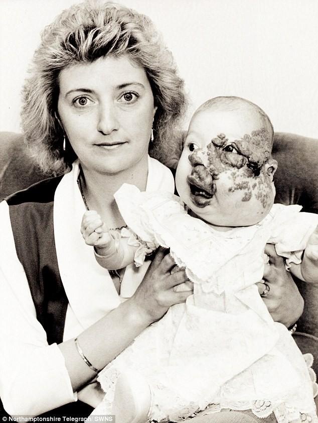 Sinh ra với gương mặt biến dạng và bị người đời xa lánh, phép màu đã khiến cuộc đời cô gái thay đổi sau 25 năm - Ảnh 1.