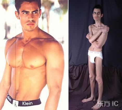 Mặt trái đáng sợ của ngành người mẫu: bị lạm dụng tình dục, những căn bệnh nghề nghiệp, ăn bông gòn ép cân và nhiều cái chết đau đớn - Ảnh 5.