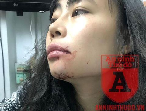 Nữ hành khách bị lái xe Uber đánh bầm mặt: Tôi cần một lời xin lỗi công khai! - Ảnh 2.