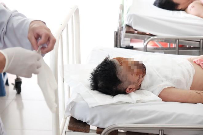 Thương tâm thiếu nữ 17 tuổi bị tạt axit hủy hoại dung nhan trên đường tan ca làm trở về - Ảnh 1.