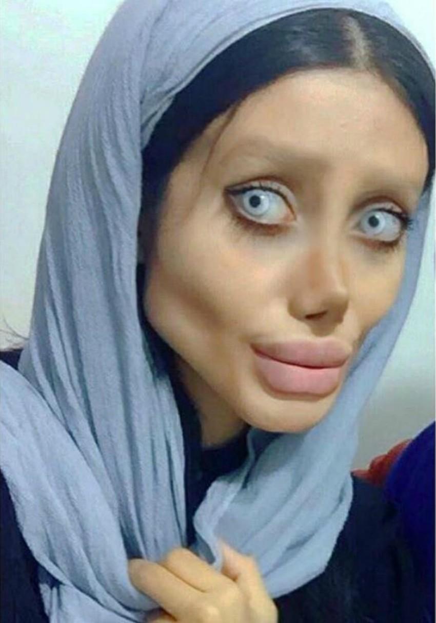 Cô gái phẫu thuật thẩm mỹ hơn 50 lần để nhìn giống Angelina Jolie, kết quả trả về gia tinh Dobby - Ảnh 3.