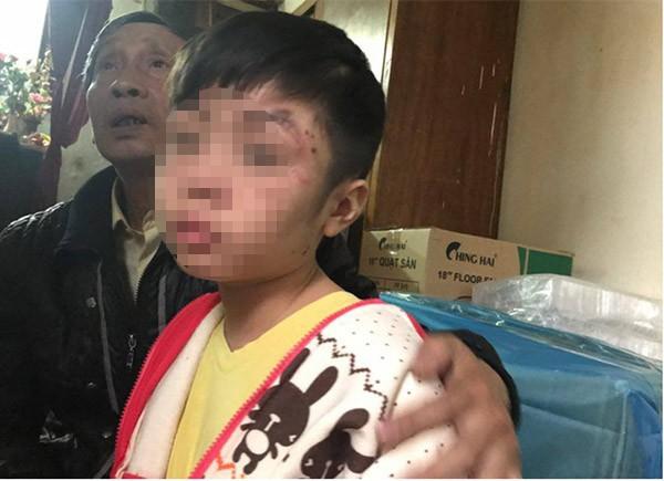 Bé trai 10 tuổi bị bạo hành: Đến bữa ăn, bố và cô bê mâm vào trong phòng, còn cháu thì ăn ở phòng ngoài - Ảnh 1.