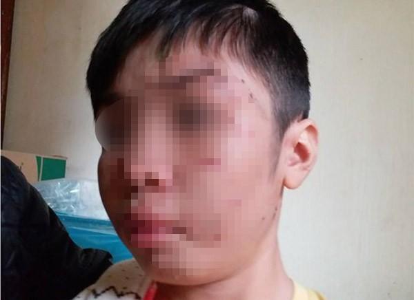Bé trai 10 tuổi bị bạo hành: Đến bữa ăn, bố và cô bê mâm vào trong phòng, còn cháu thì ăn ở phòng ngoài - Ảnh 2.