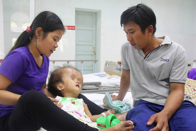 Xót cảnh bé gái 4 tuổi bị não úng thủy, đầu to gấp ba lần người thường mà bố mẹ nghèo không tiền chạy chữa - Ảnh 1.