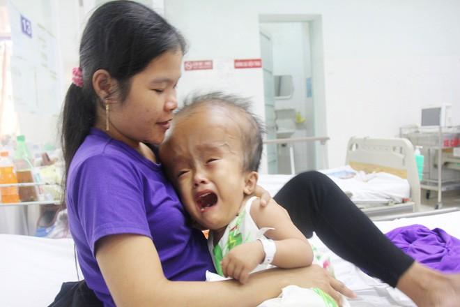 Xót cảnh bé gái 4 tuổi bị não úng thủy, đầu to gấp ba lần người thường mà bố mẹ nghèo không tiền chạy chữa - Ảnh 2.