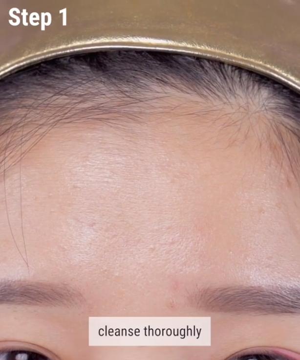 Nếu bạn đang khổ sở vì mụn đầu trắng thì đây chính là bí kíp nặn mụn chuẩn nhất dành cho bạn - Ảnh 2.