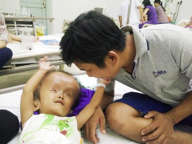 Xót cảnh bé gái 4 tuổi bị não úng thủy, đầu to gấp ba lần người thường mà bố mẹ nghèo không tiền chạy chữa - Ảnh 11.
