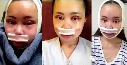 Cô gái trẻ chi hơn 3,2 tỷ đồng để phẫu thuật giống Angela Baby - Ảnh 7.