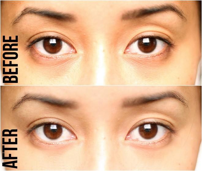 5 loại mặt nạ có tác dụng cải thiện rõ rệt vùng quầng thâm dưới mắt - Ảnh 19.