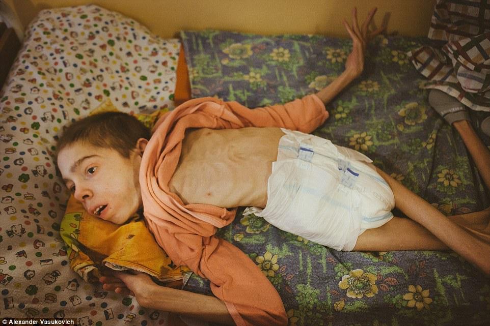 Không chỉ riêng Syria, vấn nạn suy dinh dưỡng cũng đang xảy ra ngay tại một quốc gia châu Âu - Ảnh 1.