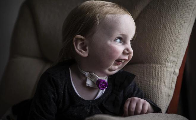 Cuộc chiến giành sự sống của cô bé dũng cảm: Không thể thở cũng chẳng thể ăn - Ảnh 3.