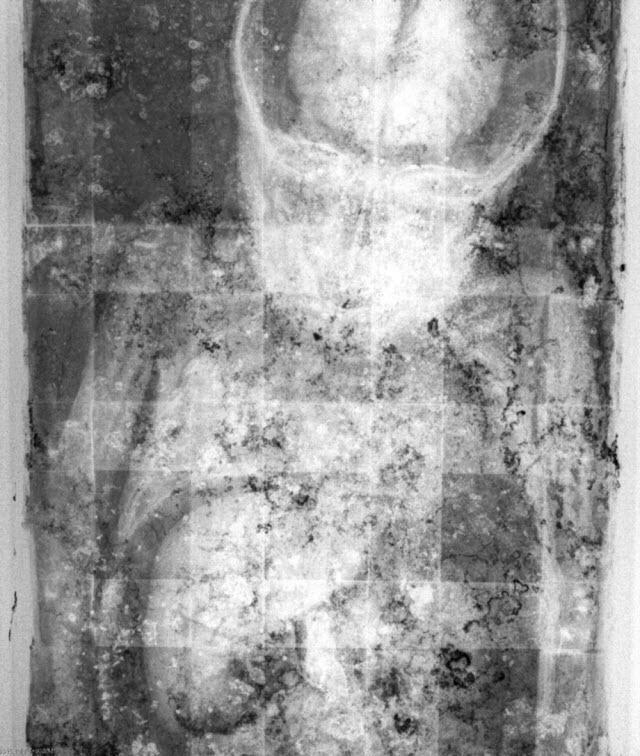 Bí ẩn xác ướp bé gái xinh xắn, trăm năm tuổi vẫn còn chớp mắt như đang ngủ - Ảnh 3.