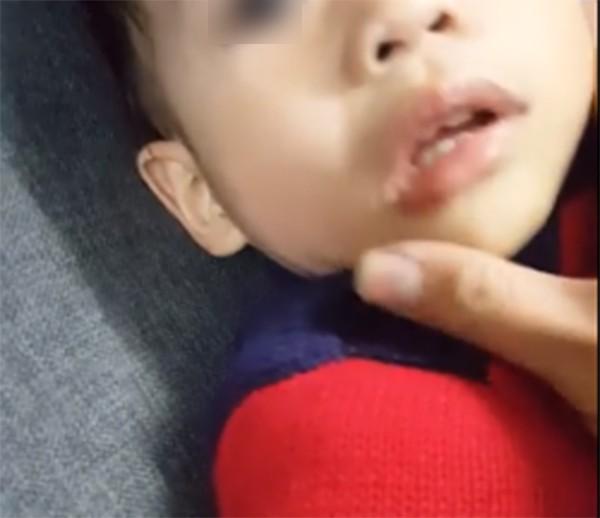 Hà Nội: Bé trai bị tát sưng tấy mặt vì sặc, bắn nước vào mặt bác sĩ khi đang khám - Ảnh 3.