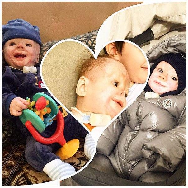 Vì một phút sơ sẩy của y tá, bé sơ sinh 3 ngày tuổi đã bị cướp mất đi hình hài - Ảnh 4.