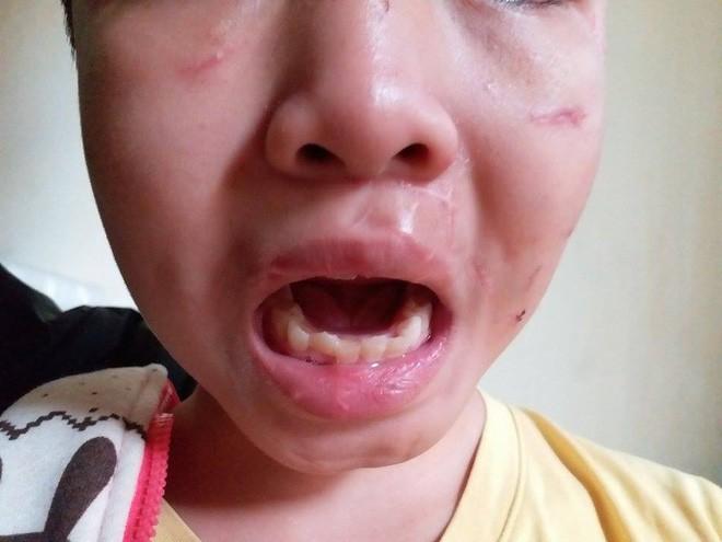 Bé trai 10 tuổi bị bạo hành: Đến bữa ăn, bố và cô bê mâm vào trong phòng, còn cháu thì ăn ở phòng ngoài - Ảnh 4.