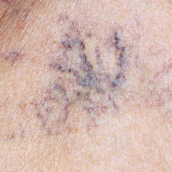 6 dấu hiệu cảnh báo gan của bạn có thể đang... bị hỏng - Ảnh 6.