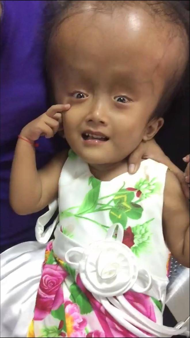 Xót cảnh bé gái 4 tuổi bị não úng thủy, đầu to gấp ba lần người thường mà bố mẹ nghèo không tiền chạy chữa - Ảnh 7.