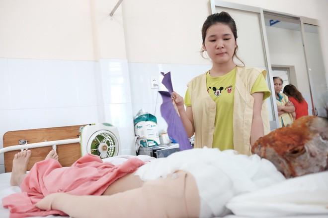 Thương tâm thiếu nữ 17 tuổi bị tạt axit hủy hoại dung nhan trên đường tan ca làm trở về - Ảnh 8.