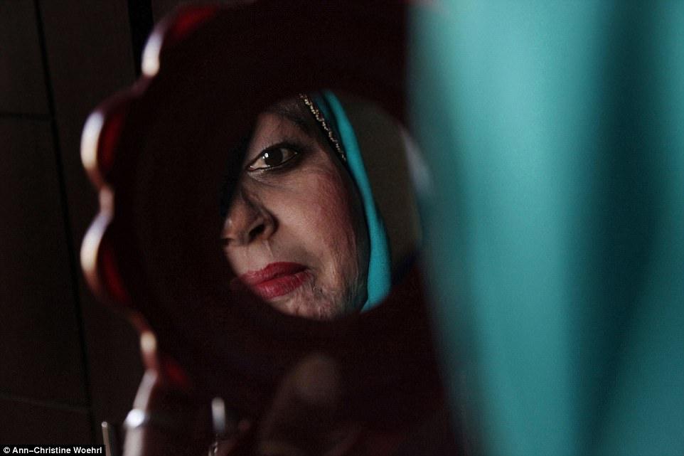 Chùm ảnh: Những gương mặt biến dạng đến ám ảnh của các nạn nhân bị tạt axit kinh hoàng - Ảnh 10.