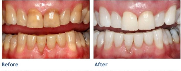 Image result for tẩy trắng răng